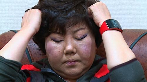 """가수 이은하 """"두통으로 의식 잃은 적도""""…KBS '생로병사의 비밀'"""