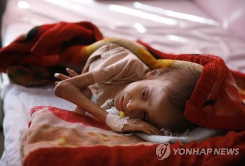 지구 최악 인도적 재앙 직면한 예멘…국제사회 뒤늦은 지원