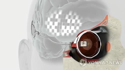 실명 늦추는 눈 이식용 전기장치 개발…호주연구팀