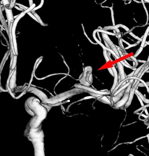 [명의에게 묻다] 40세 '뇌동맥류' 환자, 90세전에 터질 위험 '50..