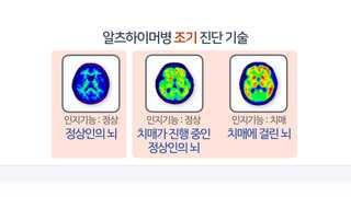 혈액검사로 조기 진단…정상인 치매 예측 길 열려