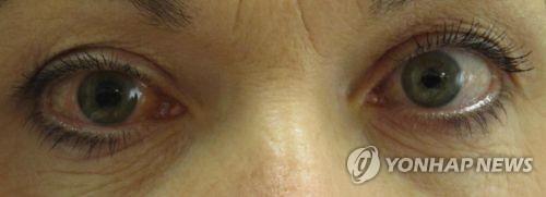 [건강이 최고] 40대 눈 건강 위험하다…