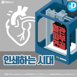 [카드뉴스] 혈관·뼈·내장 3D 프린팅 시대…장기이식 혁명 오나