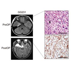 KAIST '뇌전증 동반 소아 뇌종양' 근본 원인 찾아내
