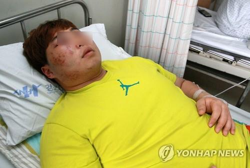 South Korean weightlifter Hwang Woo-man lies in a hospital bed in Chuncheon, Gangwon Province, on Jan. 2, 2016, after getting allegedly assaulted by fellow lifter Sa Jae-hyouk. (Yonhap)
