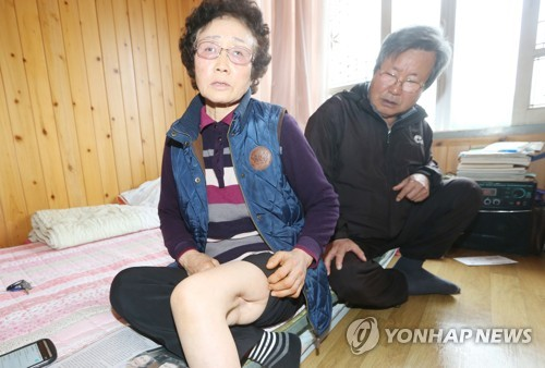 This photo, taken March 22, 2018, shows Kim Sun-yeo, a 72-year-old resident of the southern island of Jeju, showing the scar from the gunshot wound she sustained during a government crackdown in 1948. (Yonhap)