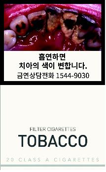 This photo provided by the Ministry of Health and Welfare shows a pictorial warning for tobacco packs on tooth discoloration, one of the side effects of smoking. (Yonhap)
