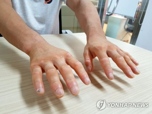 South Korean judoka An Ba-ul shows his hands ahead of training at the National Training Center in Jincheon, North Chungcheong Province, on Aug. 10, 2018. (Yonhap)
