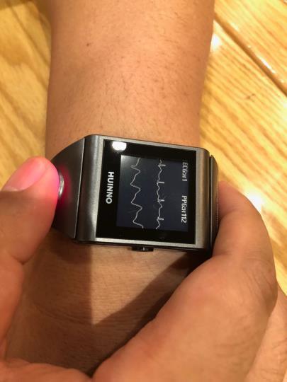 Wearable cardiac monitor approved in S. Korea under ICT regulatory sandbox