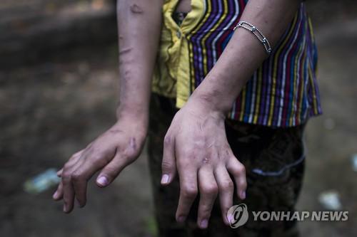 노예 노동 소녀의 상처투성이 손