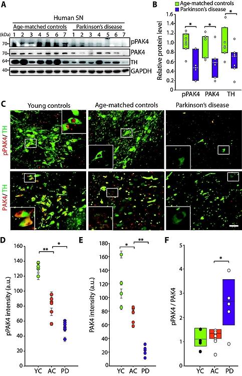 파킨슨병 환자의 사후 뇌조직에서 PAK4 감소
