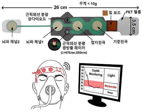 무선 마취 심도 모니터링 측정기 구성