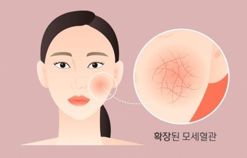 안면홍조[건강보험심사평가원 제공]