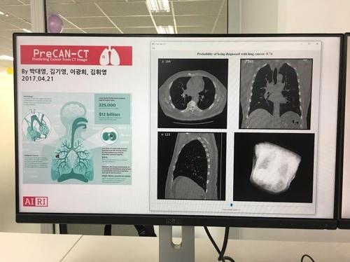 폐암 진단 AI 프로그램 '프리캔-CT'