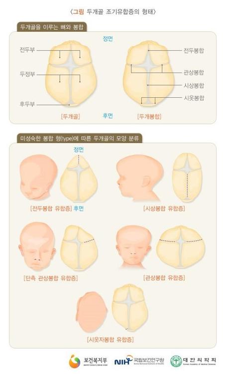 """[명의에게 묻다] '얼굴 비대칭' 우리 아이…""""조기 맞춤치료 중요"""""""