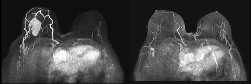 [명의에게 묻다] 생존율 높아진 유방암, '감쪽같은' 수술 가능할까?