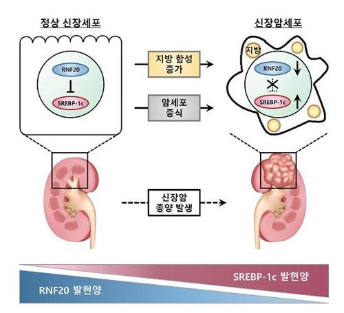 신장암 발병 메커니즘 그림 설명 [서울대 제공=연합뉴스]