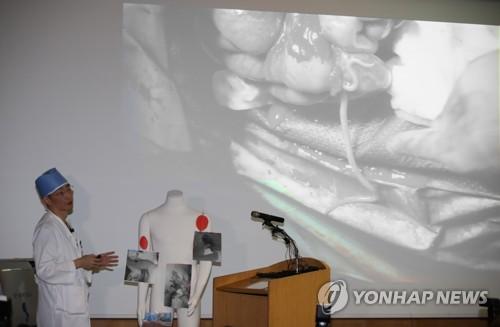 북한 귀순 병사 배에서 나온 기생충