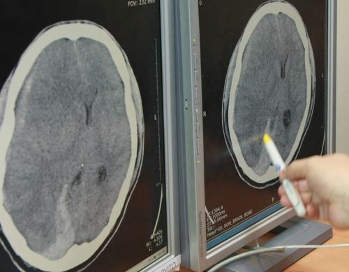 뇌 CT사진 [연합뉴스 자료사진]