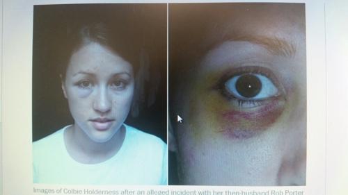 포터의 첫 부인인 콜비 홀더니스의 눈주위가 멍든 사진