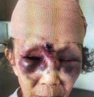LA 한인타운에서 폭행당한 한인 할머니