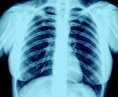 폐 X선 촬영사진
