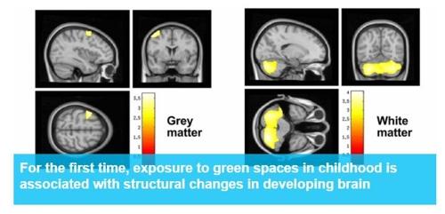녹지공간 노출에 따른 어린이 뇌의 변화