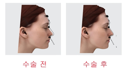 울산대 교원기업의 환자 맞춤형 코 성형수술 가이드 제품