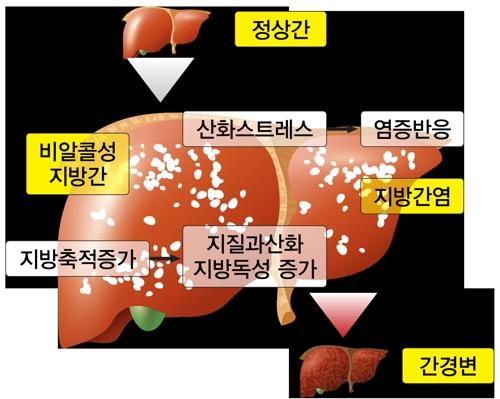 쌍별 귀뚜라미 추출물이 비알코올성 지방간 잡는다