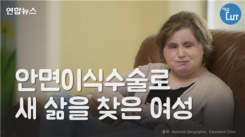 [이슈 컷] 얼굴 잃었던 그녀…안면이식수술로 새 삶 찾다
