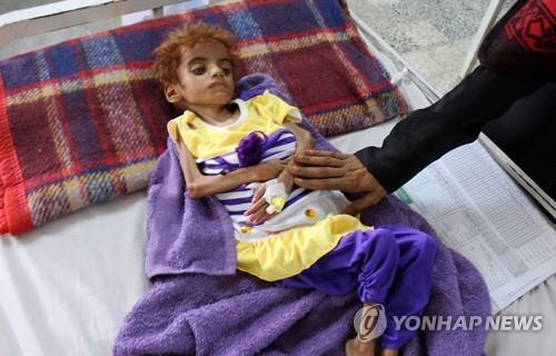 영양실조로 고통받고 있는 예멘의 어린이