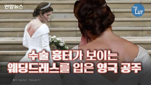 [이슈 컷] 수술 흉터가 보이는 웨딩드레스를 입은 영국 공주