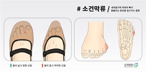 """[건강이 최고] 새끼발가락 아픈 '소건막류'…""""꽉 끼는 구두 피해야"""""""