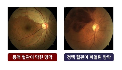 """[건강이 최고] 실명위험 '눈 중풍'…""""혈압·당뇨 관리가 관건"""""""