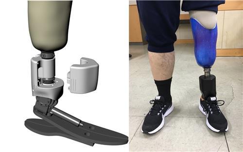"""""""내 다리 같은 느낌"""" 스마트로봇 의족 상용화 성공"""