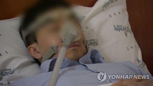 [건강이 최고] '수면무호흡' 있으면 치매 위험 1.6배↑
