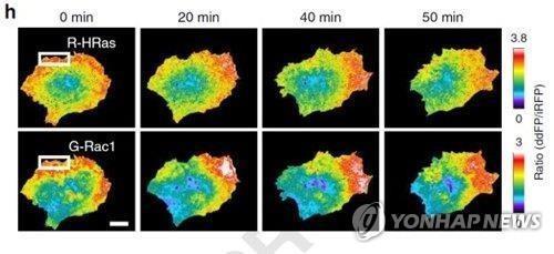 삼중음성유방암, 화학요법 안 듣는 이유 알아냈다