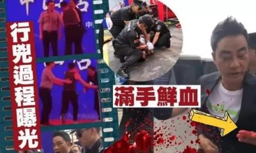 홍콩 유명배우 런다화 중국서 행사도중 칼에 찔려