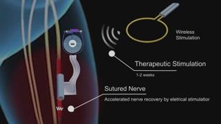 신경치료 후 몸속 자연분해 전자약 개발