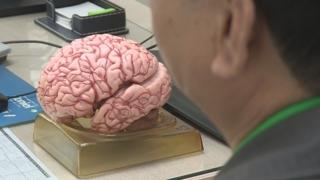 """1억명 앓는 뇌신경질환…""""융합클러스터 구축 시급"""""""