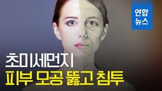 [영상] 초미세먼지 노출 많을수록 피부 주름도 악화