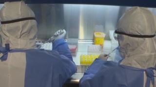 """""""日 신종플루·에볼라·HIV약으로 코로나19 치료시도"""""""