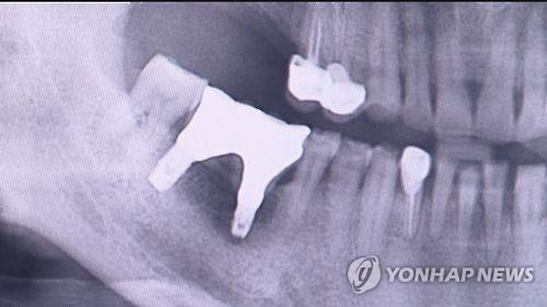 임플란트 치과 진료
