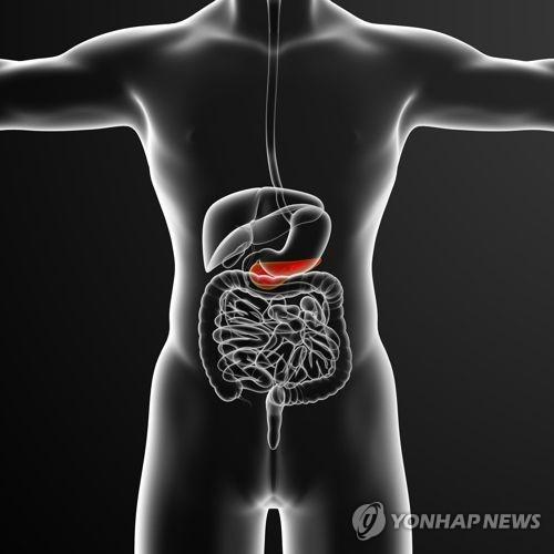 [명의에게 묻다] 절망의 상징 '췌장암'…이젠 '희망'이 보인다