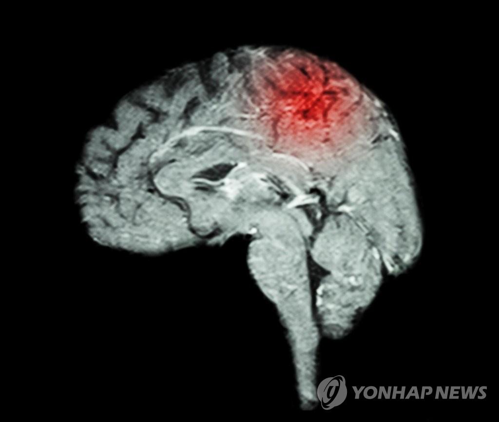 뇌졸중 초기 인지검사로 예후 예측 가능