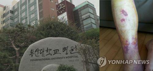 부산대병원 전공의 폭행 교수 2명 각각 집행유예·벌금형