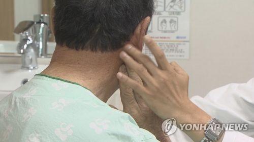 안면신경마비  [연합뉴스TV 제공]
