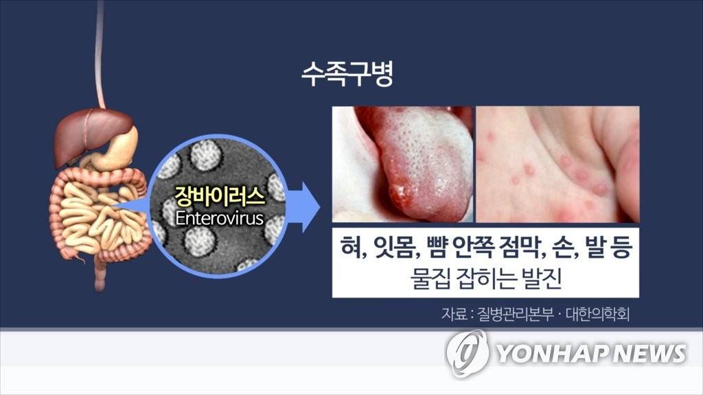 수족구병(CG) [연합뉴스TV 제공]