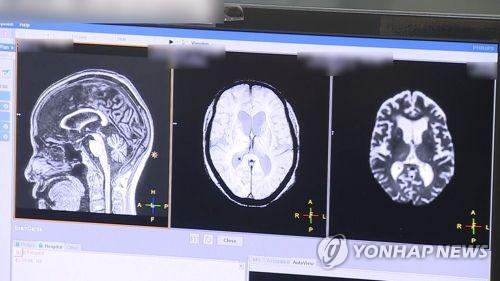 """뇌과학 혁명 불러올까…""""中, 세계서 가장 강력한 MRI 개발 중"""""""