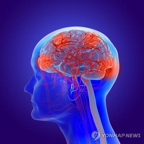 '고장 난 뇌'를 통해 보는 우리의 의식